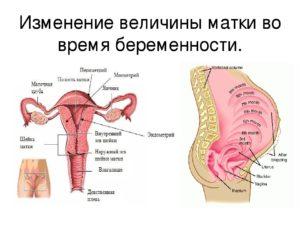 Как поднять матку при беременности
