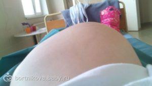 35 Неделя беременности боли промежности