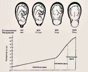 Раскрытие на кончик пальца через сколько роды