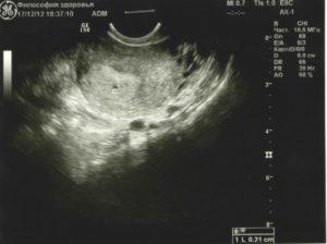 3 недели от зачатия узи покажет беременность