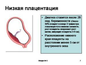 Низкая плацентация при беременности 22 неделя