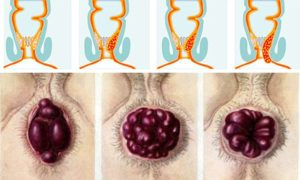 Болит задний проход после родов