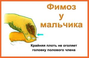 Комаровский открытие головки у мальчиков