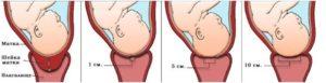 Открыта шейка матки без беременности