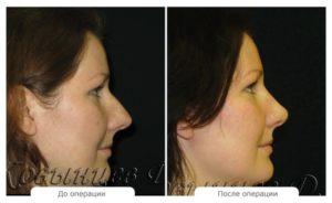 Почему при беременности увеличивается нос
