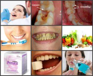 Крошатся зубы во время беременности