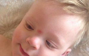 Шишка на переносице у ребенка