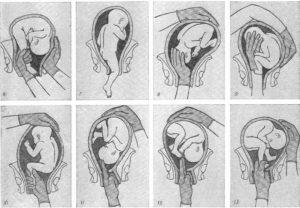 Ребенок лежит поперек в животе в 30 недель