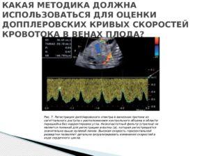 Реверсный кровоток в венозном протоке у плода последствия