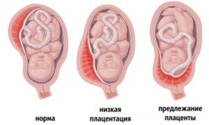 Низкая плацента 13 неделе беременности