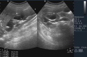 Расширение лоханки почки у плода при беременности