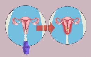 Можно ли во время беременности делать спринцевание