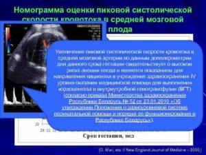 Скорость кровотока в средней мозговой артерии плода норма