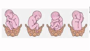 Как понять перевернулся ли ребенок вниз головой без узи