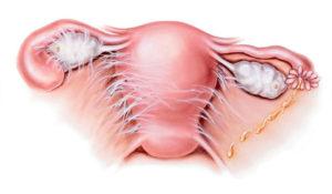 Воспаление матки симптомы после кесарева