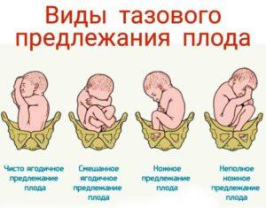 36 Недель беременности тазовое предлежание вторая беременность