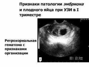 Отслойка Плода На Ранних Сроках Беременности