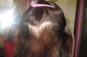 После Родов Выпадают Волосы Пучками Что Делать