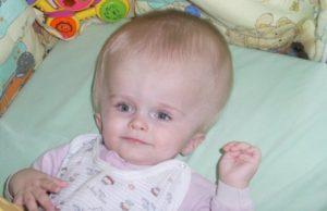 Почему голова большая у ребенка