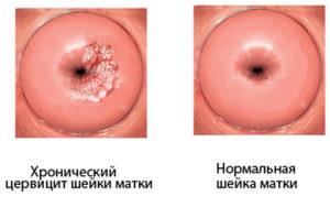 Выделения при беременности после осмотра шейки матки при беременности
