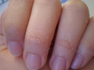 У Ребенка Облазят Ногти На Руках Фото