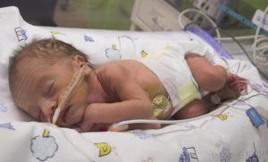 Роды 29 неделе беременности последствия