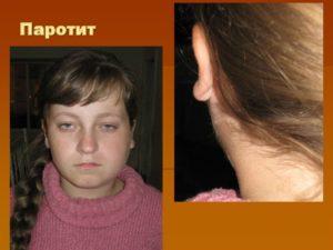 Свинка Болезнь Симптомы У Детей С Фото