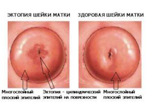 Кровит шейка матки при беременности после осмотра