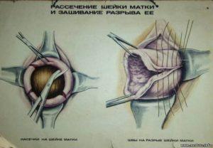 Швы на шейке матки после родов сколько заживает
