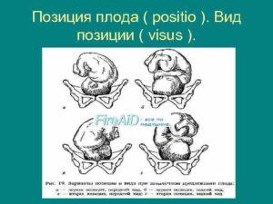 Положение плода продольное головное позиция 2 вид передний