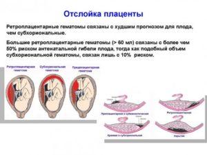 Отслойка плаценты на 9 неделе беременности
