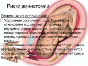 При беременности нарушение кровотока в пуповине