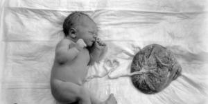 К чему пуповина ребенка прикреплена в утробе матери