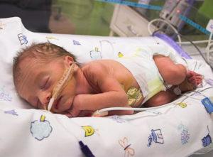 Роды в 30 недель беременности последствия