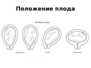 Косое положение плода при беременности на 30 неделе беременности