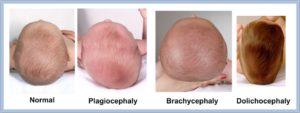 Долихоцефалическая форма головки плода причины
