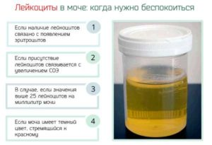 Лейкоциты 15 20 В Моче У Ребенка