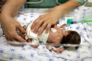 Рождение ребенка 22 неделе беременности