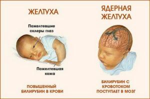Форум Желтушка У Новорожденных Причины И Последствия