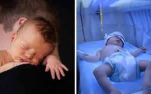 Желтушка у новорожденного в роддоме