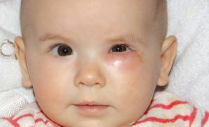 Почему Гноятся Глаза У Новорожденного Ребенка Форум