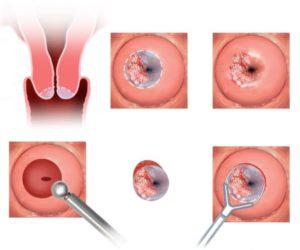 После снятия пессария кровянистые выделения