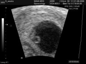 Две недели беременности покажет узи