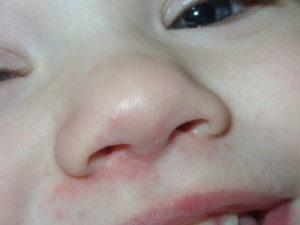 В Носу У Ребенка Стрептодермия Как Лечить