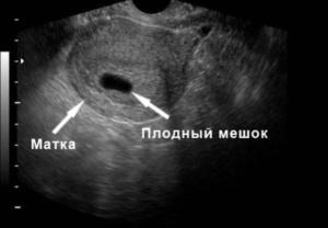 На узи не видно эмбриона 5 недель
