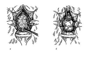 Образ жизни после наложения швов на шейку матки при беременности