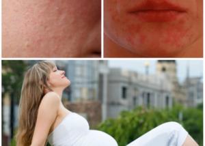 Прыщи на лице как признак беременности до задержки