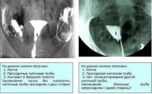 Через сколько после рентгена можно беременеть