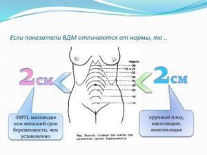 17 Неделя беременности высота дна матки