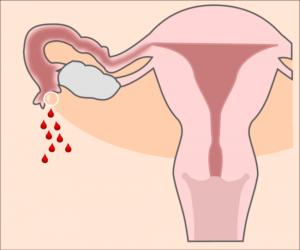 Тянет матку при беременности на ранних сроках